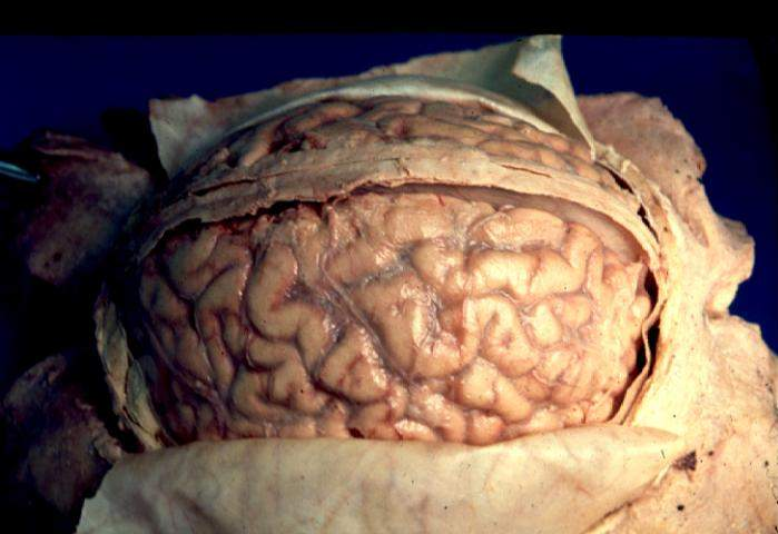 If the nhs is like a human brain we may have to think about brain ccuart Image collections